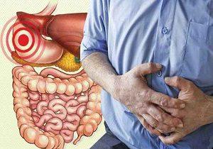 بیماری کولیت روده