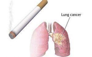 سرطان ریه بدخیم چگونه است